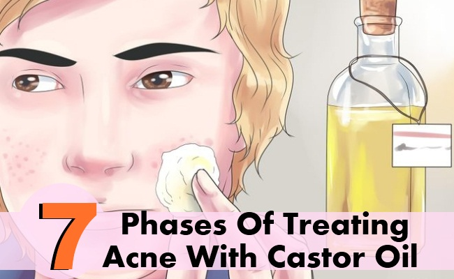 7-Phases-Of-Treating-Acne-With-Castor-Oil